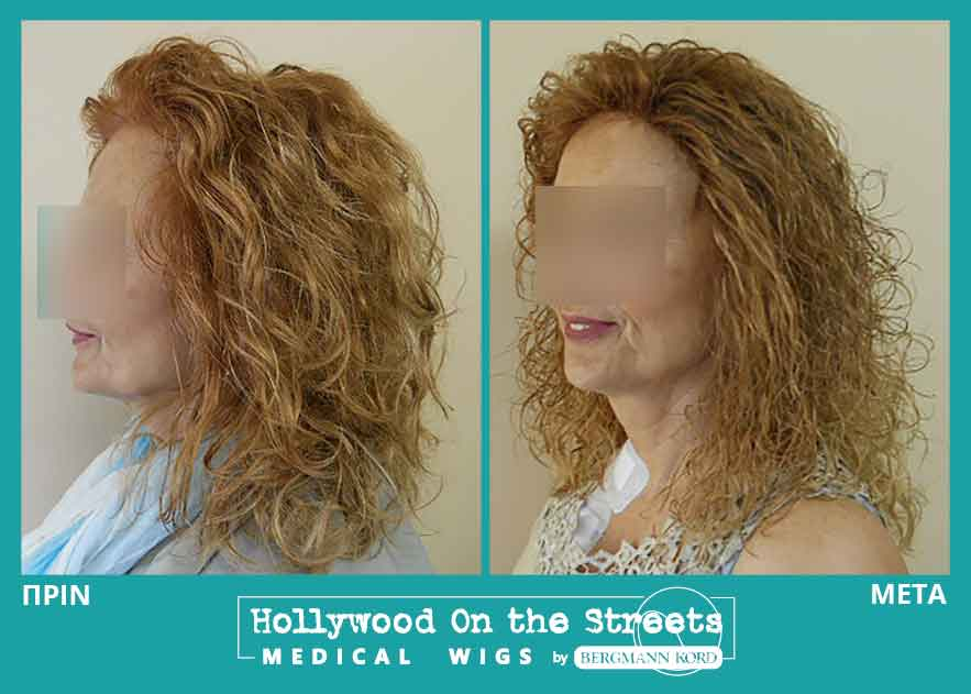 hair-system-hos-wigs-results-women-027002PG-001
