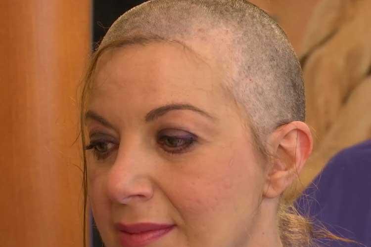 iatrikes-peroukes-hair-for-help-peripoiisi-neofywn-malliwn-001