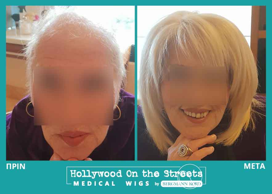 hair-system-hos-wigs-results-special-cases-021558PG-001