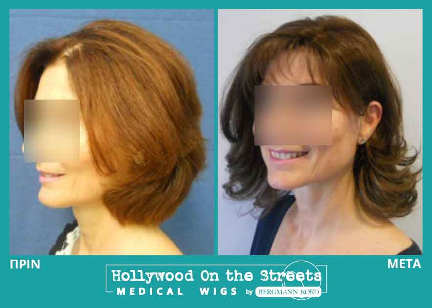 hair-system-hos-wigs-results-special-cases-024344PG-001