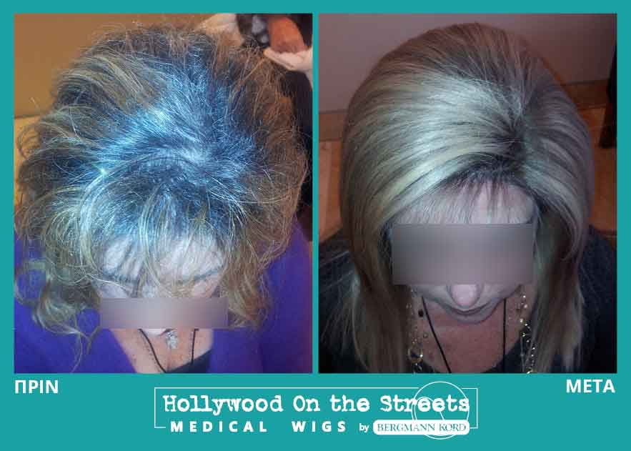 hair-system-hos-wigs-results-special-cases-027897PG-001