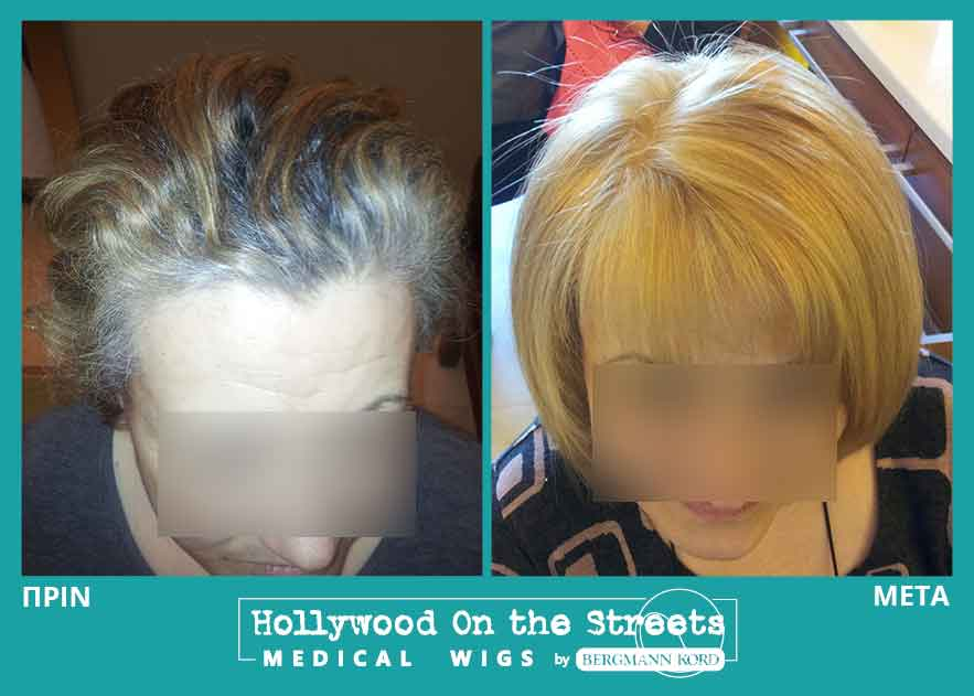 hair-system-hos-wigs-results-special-cases-031621PG-001